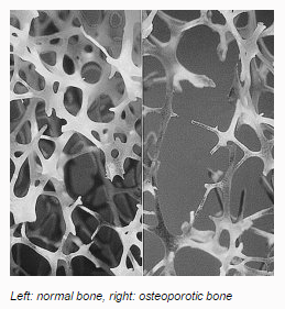 osteoporosis-pic